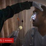 Falleció en Argentina la primera víctima del llamado 'hongo negro'